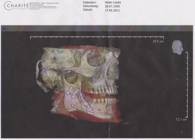 Nach der ersten Operation - vom Rechtsanwalt  im Stich gelassen am 2.8.2011